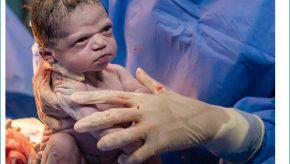 angry baby newborn
